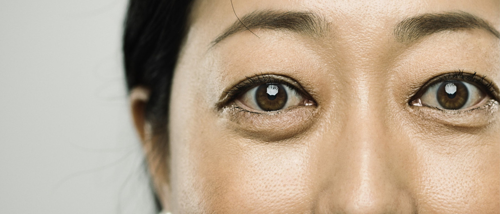 Foods to eat to reduce eye bags and dark circles