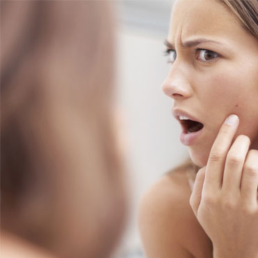 Acne Causing Habits You Need to Stop Right NOW!